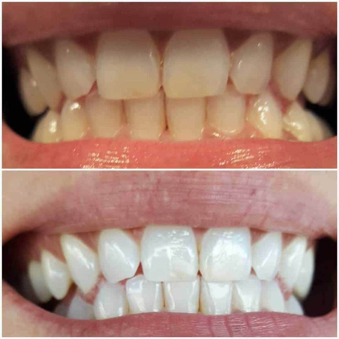 Snow Teeth Whitening Zangdeal